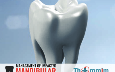 Impacted Mandibular Third Molar Surgery – An overview